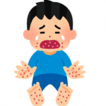 手足口病の症状やうつる期間は?咳や鼻水が出るのかも調べてみた!